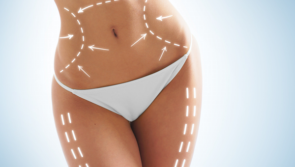 stretch mark removal treatments